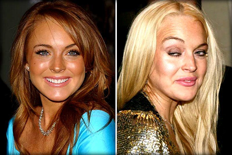 Шокирующие фотографии знаменитостей ДО и ПОСЛЕ употребления наркотиков (32 фото)