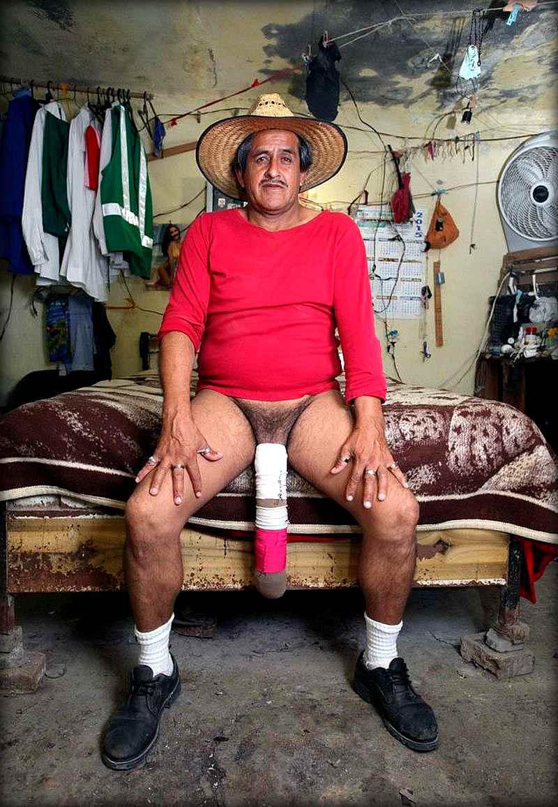 """Мексиканец с третьей """"ногой"""" хочет, чтобы его признали инвалидом"""