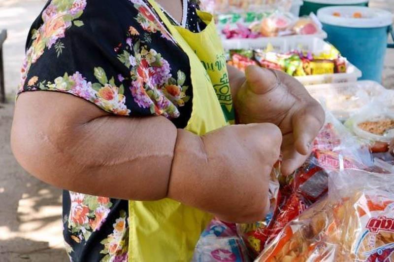 В Таиланде живет женщина-халк с самыми большими руками в мире